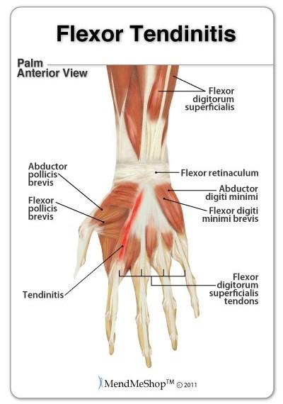 symptoms, diagnosis and treatment for flexor tendinitis, Cephalic Vein