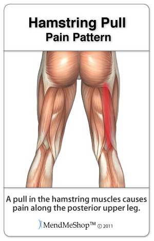 Hamstring pain patterns.