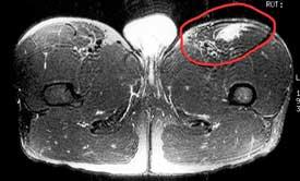 Quadricep MRI