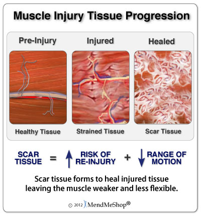speed healing and reduce scar tissue inferno bfst wrap and conservative treatment therapies