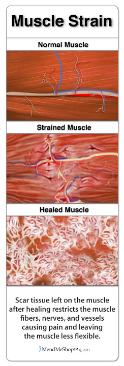 Achilles Tendon strain injury recover can be hindered by scar development.