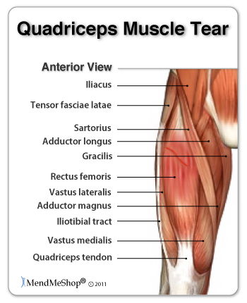 quadricep pain anatomy