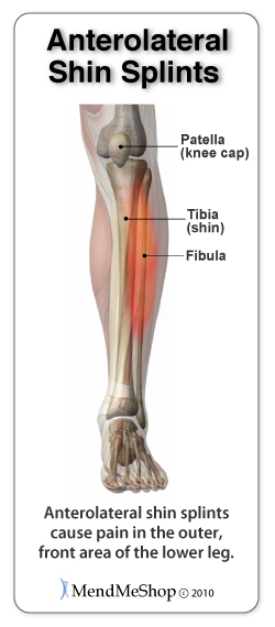 Anterolateral Shin Splint pain areas