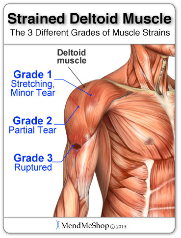 shoulder muscle pain, relief pain