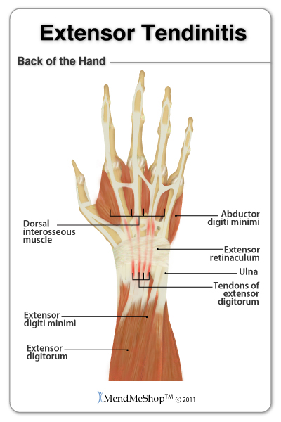 symptoms, diagnosis and treatment for extensor tendinitis, Cephalic Vein